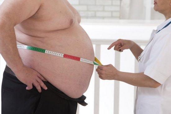 Ожирение 4 степени