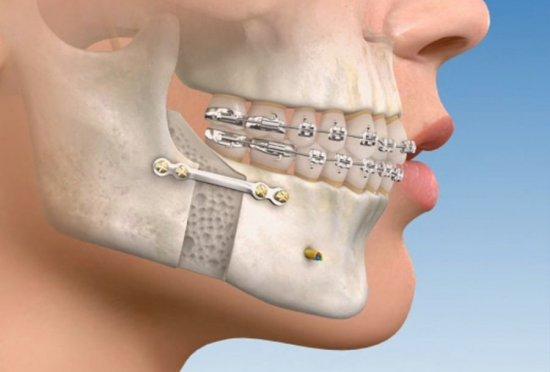 Остеосинтез челюсти