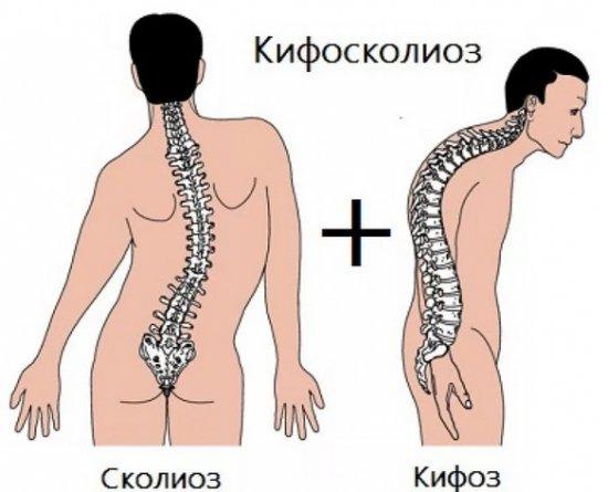 Кифосколиоз